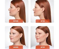 double chin, dermal fillers