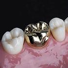 dental onlay.jpg