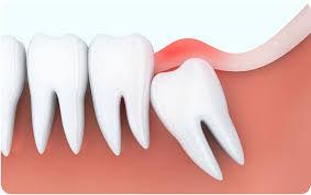 wisdom tooth removal.jpg