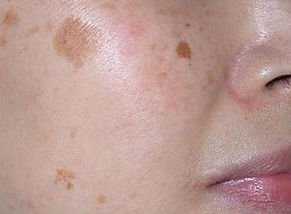 Brown spot removal, melasma removal, pigmentation removal Singapore.