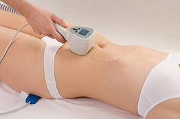 Exilis and Velashape Body Slimming & Contouring Singapore, non-surgical body fat removal, body contouring, body slimming, clinically proven, best aesthetics clinic Singapore.