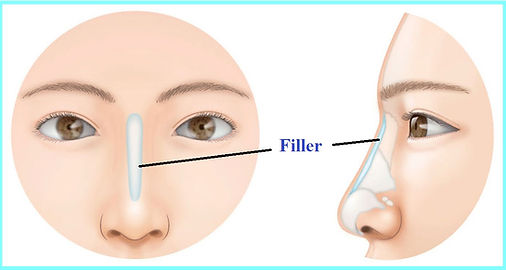 Nose Filler Singapore, Higher Nose Bride Filler Singapore, Famous Tiffiny Yang Aesthetics Clinic