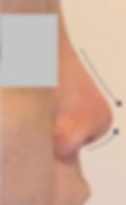 Best Nose Threadlift Singapore, Nose threadlift for higher nose, nose contouring nose threadlift Singapore, Korean nose threadlift, HIKO Nose threadlift Singapore, higher nose with threadlift