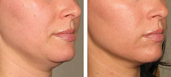 Ulthera HIFU non-surgical facelift Singapore, Ultherapy Singapore, Best HIFU treatment