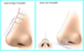 Korean Hiko PDO Nose Threadlift, Nose Tip Threadlift, Nose Bridge Threadlift Singapore