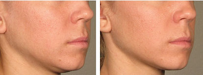 Ultherapy Treatment Singapore, Ulthera Treatment Singapore Facelift, non-surgical Jawline lift,  jawline definition treatment.