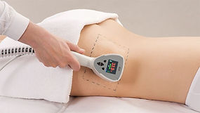 Body slimming, body fat reduction, velashape fat reduction Singapore, exilis body skin tightening, non-surgical fat reduction, circumference fat reduction, best body slimming treatment Singapore.