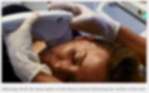 Ultherapy Singapore, Ulthera Singapore, Best Ulthera Clinic Singapore, Ulthera HIFU, Ulthera Facelift Singapore, non-surgical facelift ulthera, Ultherapy Facelift Singapore.