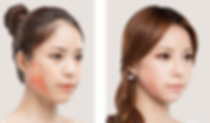 Face Slimming Singapore, Botox Jaw Reduction, V Face Contour