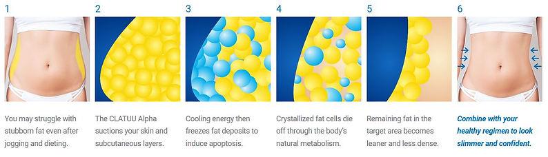 Fat Freezing Tiffiny Yang Aesthetics