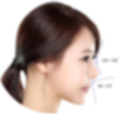Nose Filler Singapore, Nose Contour Singapore, Nose Job non-surgical, Best Nose Filler Singapore