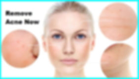 Treatment for Removal of Pimple Acne Singapore