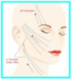 Face Threadlift Direction Illustration Long Lasting Threadlift to lift facial skin, Tiffiny Yang Aesthetics Clinic, best face threadlift clinic tiffiny yang, threadlift expert tiffiny yang Singapore.