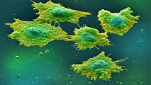 colon-cancer-768x432.jpg