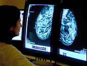 New Study Reveals Longer Follow-Up Time for Asian American Women After Abnormal Mammogram