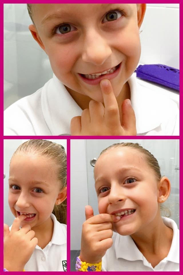 060415 1st tooth 2.JPG