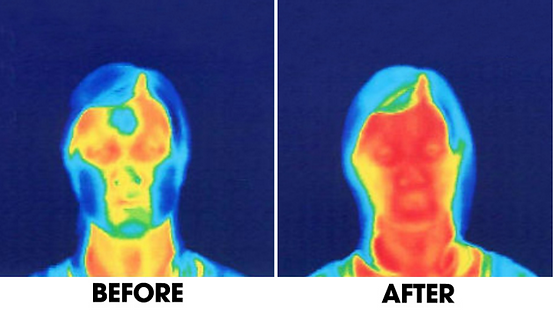 Before-after-thermographic-facial-image.