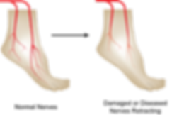 foot neuropathy 2.png
