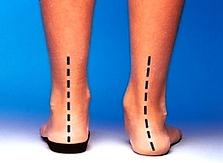 ortopodologia, tractaments ortopèdics del peu, plantilles