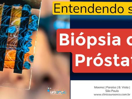 Entenda o Resultado de sua Biópsia de Próstata positiva para o Câncer