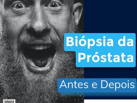 Biópsia de Próstata | O que é preciso saber antes? | Do preparo à recuperação - Guia do homem
