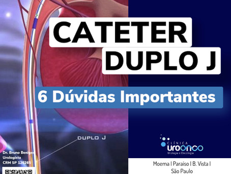 Cateter Duplo J - 6 dúvidas importantes
