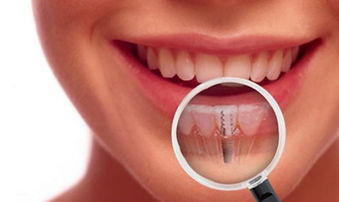 implant dentistry advantages