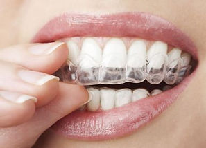 Bruxism Treatment Mouth Guard