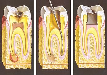 Endodontics root canal