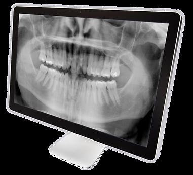 Panorex X-ray Monitor