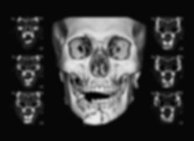CT scan of facial bone, Clinical indicat