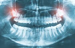 Cirugía de terceros molares