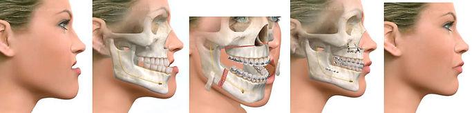Cirugia-Ortognatica.jpg