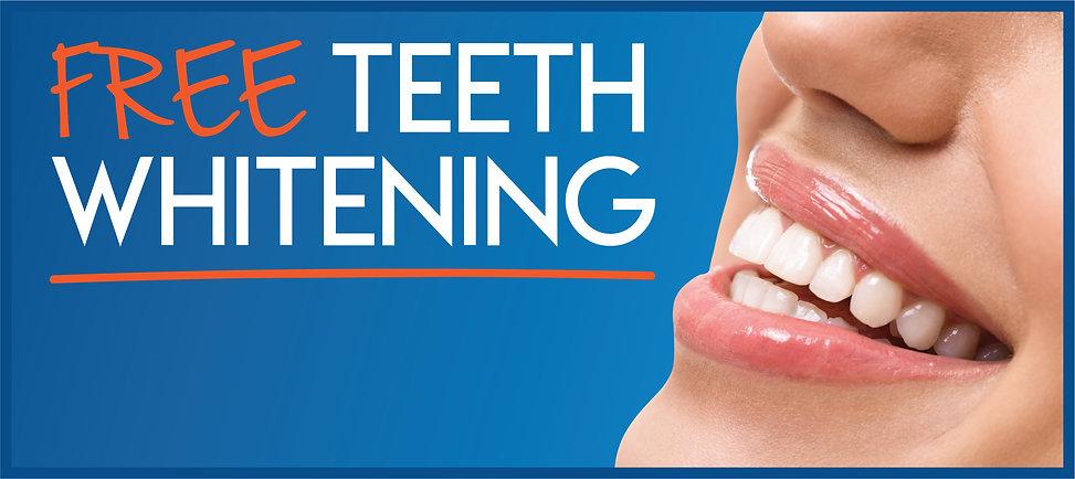 Mouzon Teeth Whitening Ad.jpg