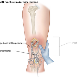 Surgery of Right Femoral Fracture