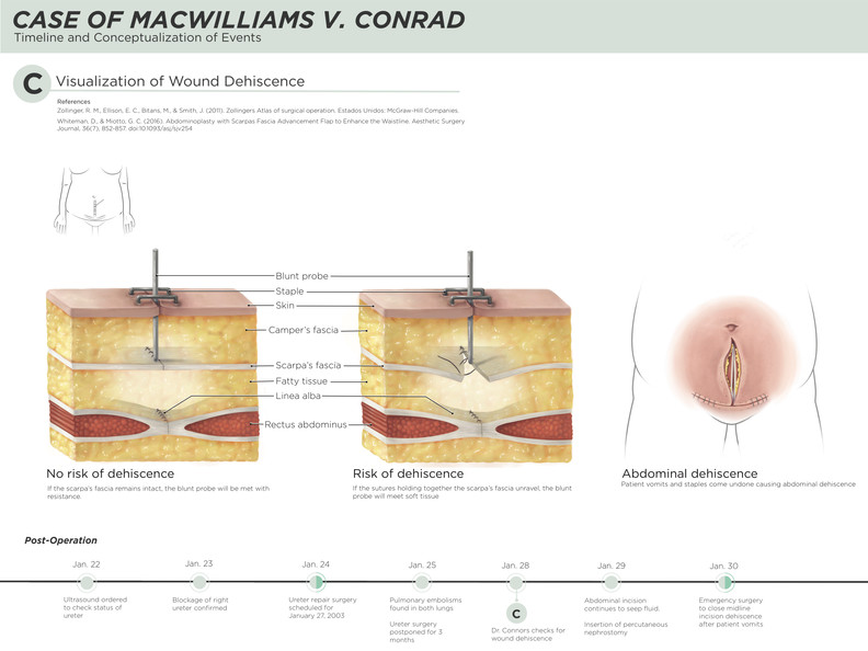 Hysterectomy Medical Legal Illustration