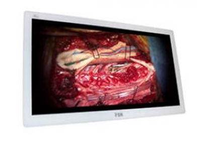 "FSN 31.5"" 4K Medical Monitor"