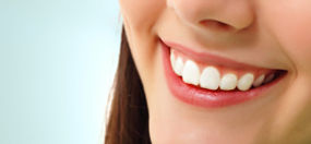 Cosmetic Dentistry, Six Month Smiles, Implants