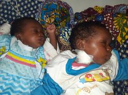 Jumeaux hospitalisés