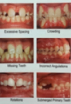 orthodontist,braces,orthodontic,care,center,west allis,beloit,braces,teeth,straight,invisalign,lingual,incognito,clear,smile,dental,dentistry,dentist,doctor,dr,najjar,iyer,wisconsin,orthodontics