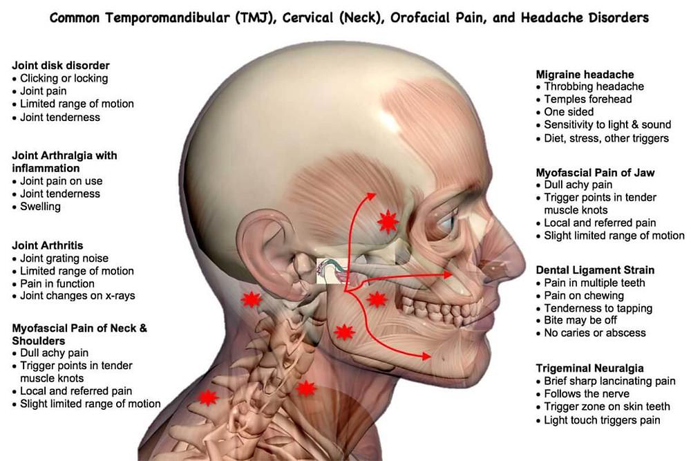 Jaw pain, tmj pain, tmd, tmj cornelius, tmj davidson, tmj huntersville, neck pain and tmj