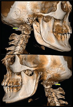 Upper Cervical Chiropractic, Natural Dizziness Solutions, Natural Headache Cure, Natural Neck Pain Treatment, Chiropractor Near Me, Cornelius NC Chiropractor, Davidson NC Chiropractor, Huntersville NC Chiropractor