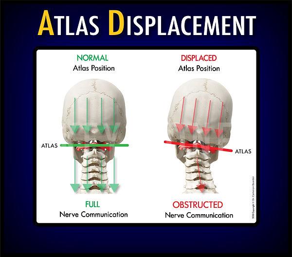 Upper Cervical Chiropractor Near Me, Blair Chiropractic Technique, Atlas Subluxation,