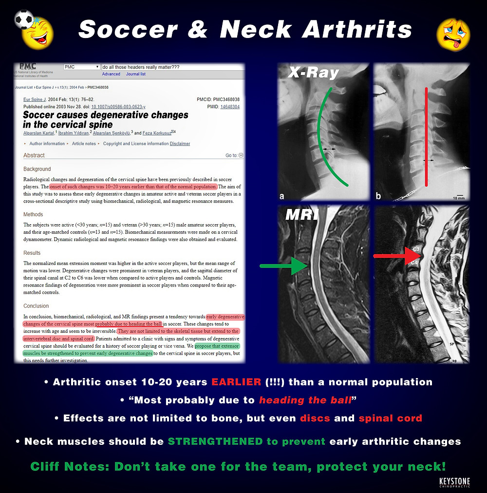 Neck pain from playing soccer, head injury from soccer, concussion, brain fog, upper cervical chiropractic, neck popping, neck clicking, neck grinding, natural neck pain relief, natural neck pain solutions