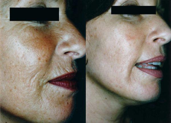 dermaroller-wrinkles-3-783x565-1.jpg