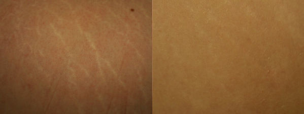 dermaroller-stretch-marks-2-783x294-1.jp