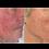 Thumbnail: AnteAGE MD® Serum (30 ml)