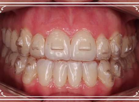 Clear Aligners - A great approach to correct dental arch asymmetries