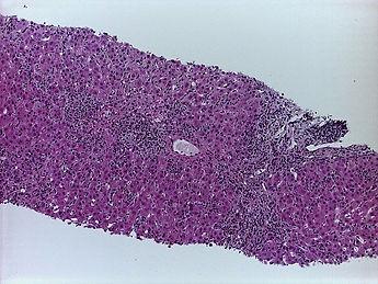 Leberbiopsie Autoimmunhepatitis