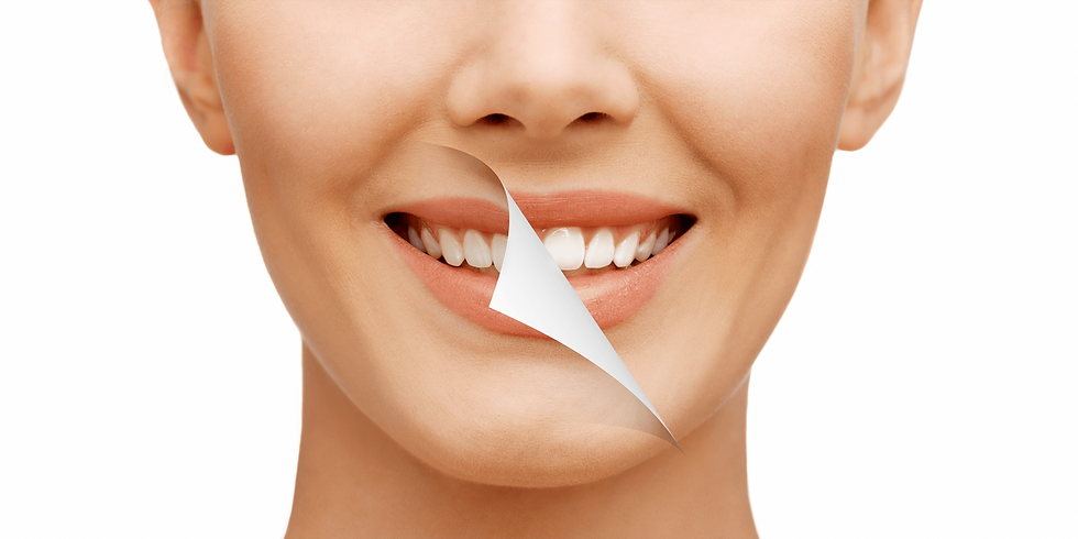 teeth-whitening-new-1-1600x800.png